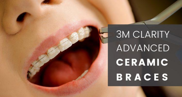 Ceramic Braces Treatment