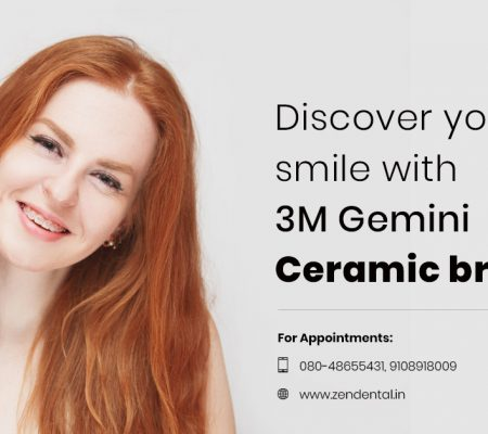 3M Gemini Ceramic braces